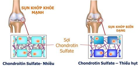 chodrointin-sulfate.jpg