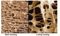 Bệnh loãng xương phòng ngừa thế nào