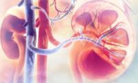 Thuốc Gazyva® (obinutuzumab) của Roche đã chứng minh tính an toàn và hiệu quả