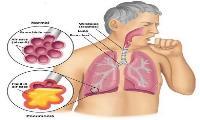 Các thuốc điều trị bệnh viêm phổi