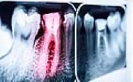 Phân tử G43 cải thiện tình trạng sâu răng.