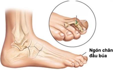 Tổn thương xương bàn chân ở bệnh nhân tiểu đường. Ảnh minh họa