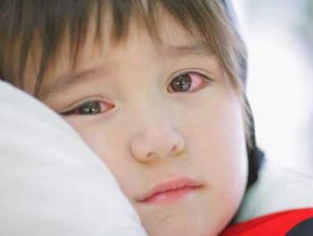 Đau mắt đỏ: nguyên nhân và cách điều trị