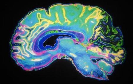 Dopamine – chất dẫn truyền thần kinh được sản xuất ở hầu hết các vùng ở não bộ