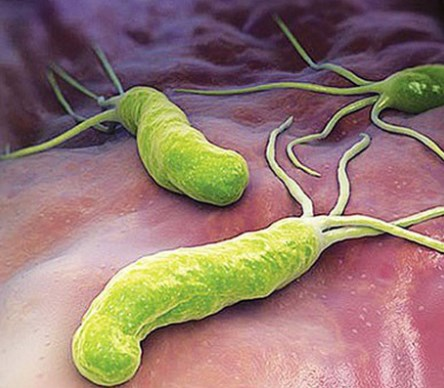 Vi khuẩn HP là vi khuẩn có thể gây ra ung thư dạ dày.Ảnh minh họa