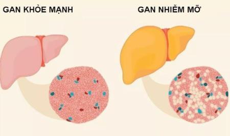Phát hiện cơ chế tình trạng gan nhiễm mỡ gây bệnh tiểu đường type 2