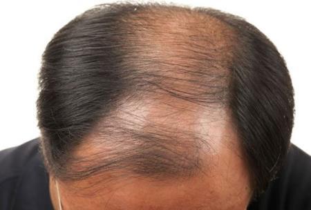 Các nhà khoa học kỳ vọng họ có thể chế tạo thành công loại thuốc giúp kích thích mọc tóc mới từ gỗ đàn hương.