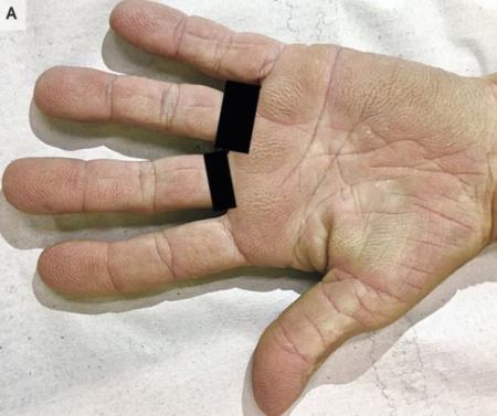 Có dấu hiệu này trong lòng bàn tay, phải nghĩ ngay đến bệnh ung thư tiềm ẩn
