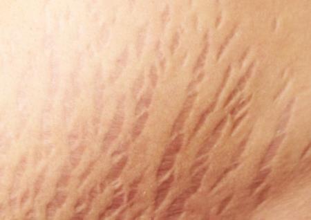 Khắc phục rạn da bụng sau khi sinh con