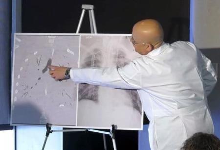 Bác sĩ Nemeh và phim chụp phổi của bệnh nhân 17 tuổi bị ruỗng phổi do hút thuốc lá điện tử.