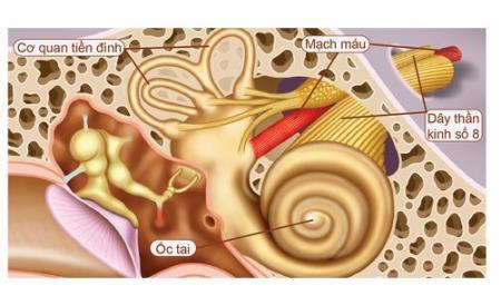 Rối loạn tiền đình và cách điều trị rối loạn tiền đình
