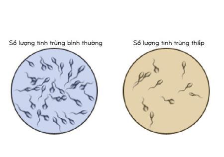 Tinh trùng ít, làm thế nào để tăng lượng tinh trùng
