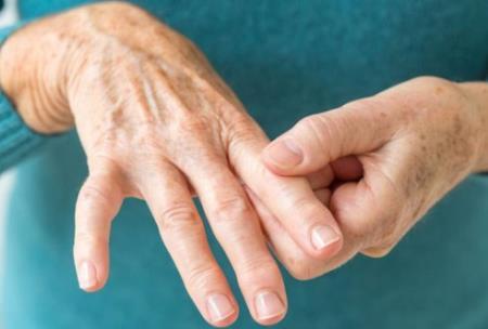 Thuốc RediTrex (methotrexate) điều trị viêm khớp và bệnh vẩy nến