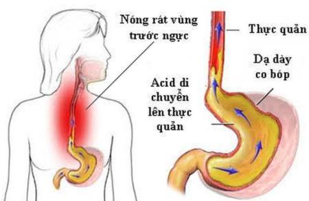 Nóng rát ở cổ họng dấu hiệu trào ngược dạ dày thực quản