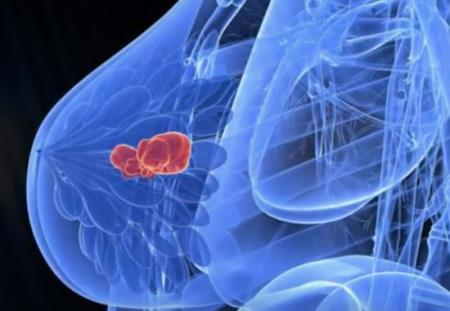 U xơ tuyến vú là một trong những bệnh hay gặp nhất ở phụ nữ