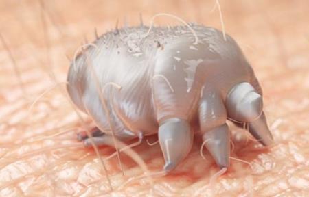 Ký sinh trùng da Sarcoptes scabiei gây bệnh ghẻ