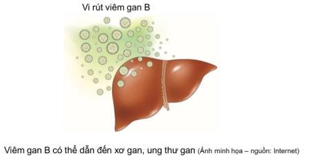 VIÊM GAN B (HBV) Ở VIỆT NAM CHIẾM TỈ LỆ CAO