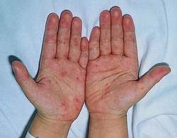 Enterovirus 71 gây bệnh tay - chân - miệng.