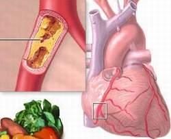 Thuốc lá gây xơ vữa mạch vành dẫn đến nguy cơ nhồi máu cơ tim.