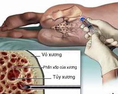 Chọc tủy xương để xét nghiệm.